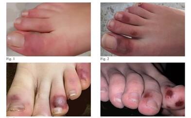 Covid-19 spôsobuje u mladých aj rany na prstoch nôh. Lekári ho tak dokážu identifikovať