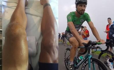 Cyklista Gilbert po desivom páde ukázal zlomené jabĺčko a spadol aj Sagan. Narazil si vraj zadok o kameň, ale v pretekoch pokračuje