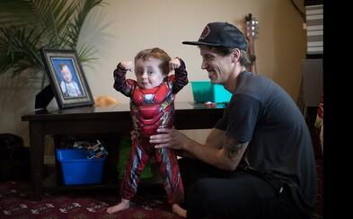 Dávali mu 5-percentnú šancu na prežitie. Chlapček, ktorého kosti sa lámu ako sklo, bojuje so svojou diagnózou po boku superhrdinov