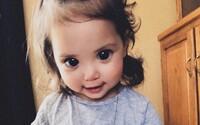 Dievčatko každého očarí nádhernými obrovskými očami. Skrýva sa za nimi vzácna genetická porucha