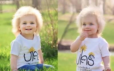 Dievčatko trpí syndrómom, kvôli ktorému mu nedokážu učesať vlasy. Mutáciu ako roztomilá malá slečna mal mať aj Albert Einstein