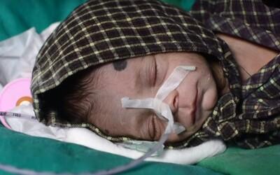 Dievčatko v Indii, pochované zaživa, vážilo cez 1 kilogram. Zakopané mohlo byť 3 až 4 dni, tvrdí jeho doktor. Našťastie prežilo