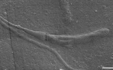Dinosaurí trus či spermie červa. Archeológom sa už podarilo objaviť tie najbizarnejšie nálezy