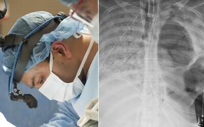 Dlouhodobý Covid-19 může lidem poškodit orgány. Výjimkou nejsou ani mladí a předtím zdraví lidé