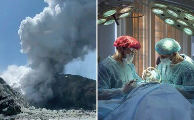Doktoři na Novém Zélandu budou potřebovat 120 metrů čtverečních kůže. Důvodem jsou popáleniny po výbuchu sopky