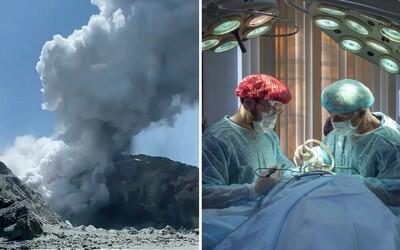 Doktori na Novom Zélande budú potrebovať 120 metrov štvorcových kože. Dôvodom sú popáleniny po výbuchu sopky