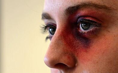 Domáci násilníci vo Švédsku budú mať vlastnú linku pomoci, kde dostanú rady od psychológov