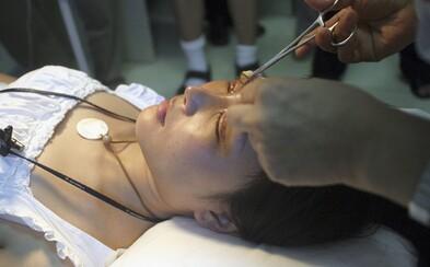 Dvestotisícová škoda, súdy s pacientmi a hororové hodnotenia. Ako pokračuje kauza plastických operácií v Košiciach