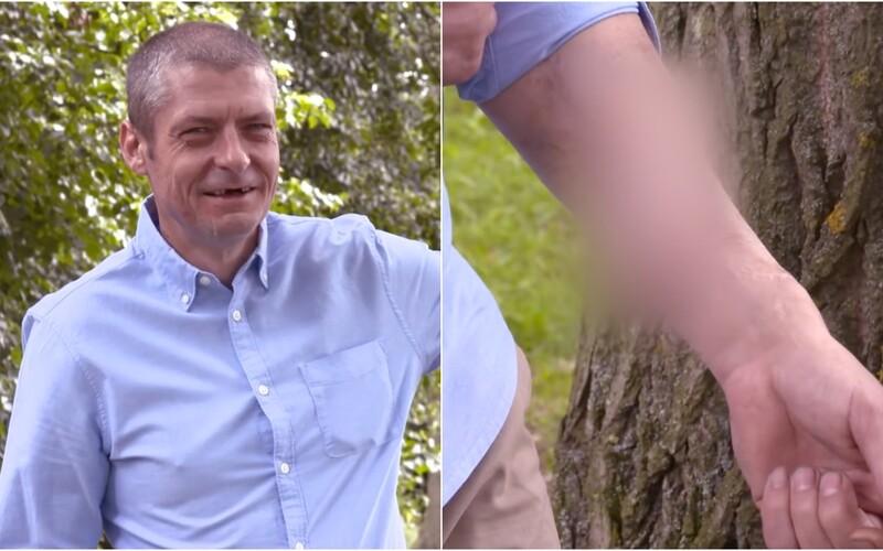 45-ročnému mužovi kvôli infekcii odpadol penis. Lekári mu na ruku prišili náhradný.