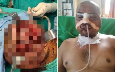 Pluh z traktoru farmáři zlámal kosti a strhl kůži. 7hodinová operace mu zachránila život.