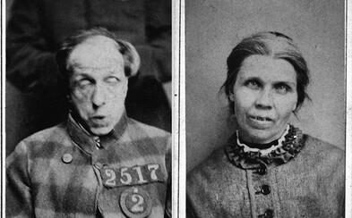Fascinujúce fotografie psychiatrických pacientov z 19. storočia. Čo zažívali vo vtedajších liečebniach?