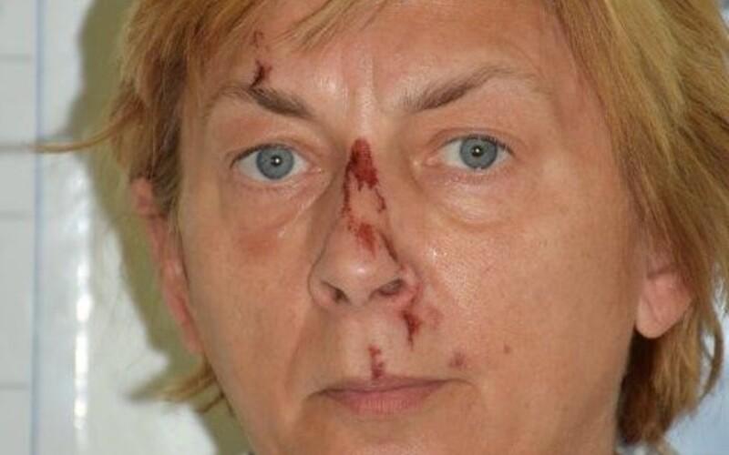 V Chorvatsku našli zraněnou žena, která neví, jak se jmenuje a kde se tam vzala.