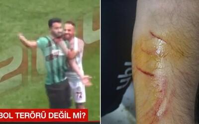 Fotbalista v Turecku dořezal protihráče žiletkou. Propašoval ji na hřiště a začal útočit