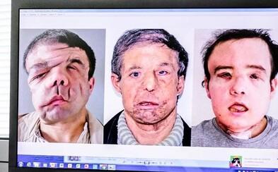 Francouz se stal prvním člověkem, který podstoupil dvě transplantace obličeje. Tři měsíce ležel na lůžku a nemohl vidět, slyšet a mluvit