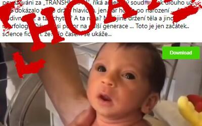 Hoaxeri zneužili fotku novorodenca a tvrdia, že nesie následky proticovidovej vakcíny. Dieťa sa však narodilo rok pred covidom