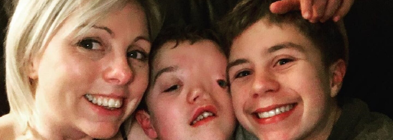 Instagram sa vyznamenal. Vymazal fotku chlapca, lebo kvôli postihnutiu nebol preň dosť pekný
