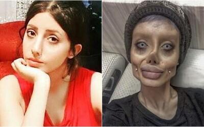 Iránčanka, ktorá mala podstúpiť 50 plastických operácií, aby vyzerala ako Angelina Jolie, má koronavírus