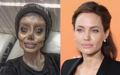 Iránčanka podstúpila už 50 plastických operácií, aby vyzerala ako Angelina Jolie. Ľudia si z nej namiesto toho uťahujú, že pripomína zombie