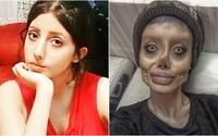 Iránka, kterou internet překřtil na Angelinu Jolie po plastických operacích, má koronavirus