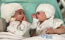 Izraelští lékaři oddělili siamská dvojčata, která byla k sobě srostlá hlavami. Operace se zúčastnilo 50 osob