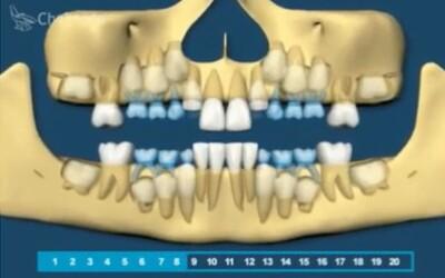 Jak probíhá růst lidských zubů v průběhu let? Přiblíží ti ho naučná animace