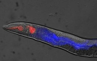 Jak se tělem šíří smrt? Vědci poprvé pozorovali úmrtí v těle maličkých červů, kteří by mohli objasnit i lidské skonání