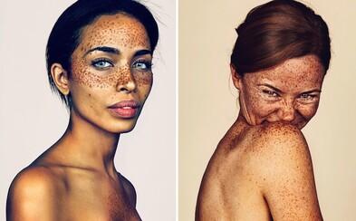 Jeho fotky poukazují na nevšední krásu. Anglický umělec se rozhodl vytvořit portréty 150 pihatých lidí