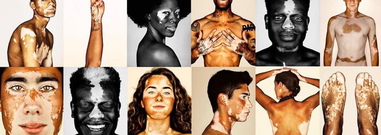 Jeho fotografie poukazujú na nevšednú krásu. Anglický umelec sa rozhodol vytvoriť portréty 150 pehavých ľudí