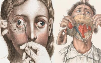 Jen pro silné žaludky: Autentické ilustrace ti odhalí děsivé operace z minulosti