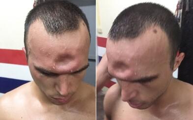 Jeremy utrpěl v thajském boxu nepříjemné zranění, ale i tak chtěl pokračovat. Zlomeninu lebky zachycuje i video ze zápasu