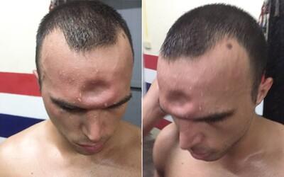 Jeremy utrpel pri thajskom boxe nepríjemné zranenie, no i tak chcel v boji pokračovať. Zlomeninu lebky zachytáva aj video z celého zápasu