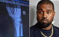 Kanye West mal bolesti ruky, natočil video, ako mu pichajú injekciu: Príliš veľa písania na telefóne, brácho