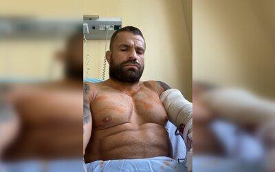 Karlos Vémola je po operaci: Doktoři potvrdili špatné zprávy, českého bijce budou operovat znovu