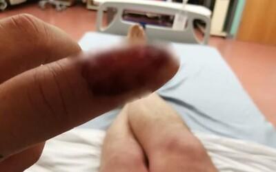 Kousáním nehtů si přivodil nebezpečnou infekci. V nemocnici musel podstoupit operaci