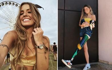 Krásná Brazilka s amputovanou nohou inspiruje lidi po celém světě. I přes handicap se usmívá a denně sportuje