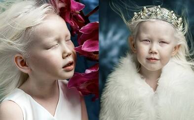 Krásne albínske dievča dostáva ponuky do modelingu ako na bežiacom páse. Nariyana má len 8 rokov a vyzerá ako Snehulienka