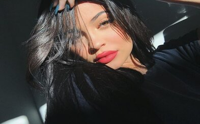 Kylie Jenner stratila svoje ikonické pery. Nechala si z nich odstrániť výplne
