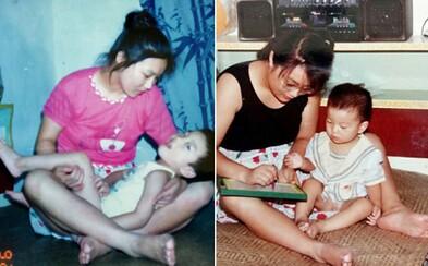 Lekári jej po pôrode povedali, aby sa syna vzdala kvôli vážnej diagnóze. On dnes študuje na Harvarde len vďaka tomu, že sa rozhodla zabojovať