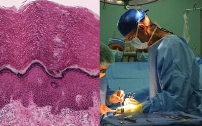Lekári objavili úplne nový ľudský orgán! Interstitium nás chráni pred pádmi i nárazmi a môže byť kľúčom v boji proti rakovine