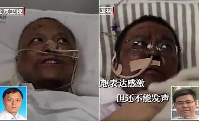 Lékařům, kteří se nakazili koronavirem, ztmavla pokožka. Proč se to stalo?