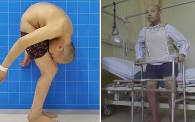 Lékařům se podařilo narovnat páteř muže, který strávil roky v krkolomné poloze. Hlava se mu skoro dotýkala genitálií