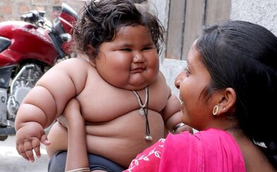 Len 8-mesačné dievčatko váži toľko, čo 4-ročné dieťa. Jej ohromnú obezitu a túžbu po jedle si nevedia vysvetliť ani lekári