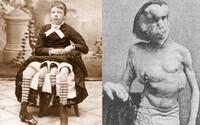 Lidské panoptikum: Jak vypadaly proslavené výstavy a vystoupení osob s tělesnými anomáliemi?