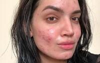 L'Oréal urazil blogerku, protože prý nemůže být spojován s lidmi trpícími akné. Výrobce kosmetiky si způsobil skandál necitlivým vzkazem