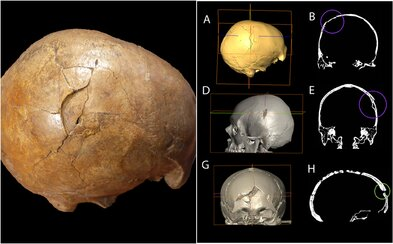 Lidé se vraždili už před 33 000 lety. Lebka, kterou našli v Rumunsku, má zranění po útoku kamenem či palicí