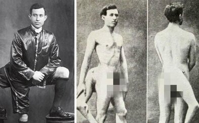 Making History With Three Legs and Two Genitals. The Story of Famous Italian Showman, Frank Lentini.