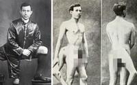 Mal tri nohy a dva pohlavné orgány. Francúzska prostitútka s dvomi vagínami ho vraj chcela pre seba