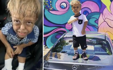 Malý Quaden trpící dwarfismem spustil vlnu hoaxů. Internet lže, že má 18 let a je instagramovou celebritou