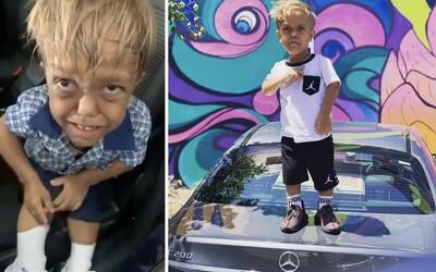 Malý Quaden trpiaci dwarfizmom spustil vlnu hoaxov. Internet klame, že má 18 rokov a je instagramovou celebritou