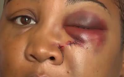 Manažérka amerického McDonaldu hodila zákazníčke do tváre mixér. Sťažovala sa totiž, že nedostala to, čo si objednala
